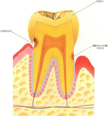 根面はなぜむし歯になりやすい?